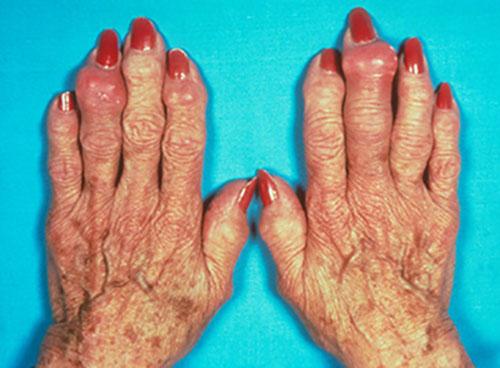 кисти рук пожилой женщины, пораженные подагрическим артритом