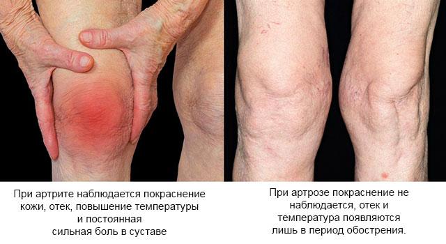 различия в симптомах артрита и артроза