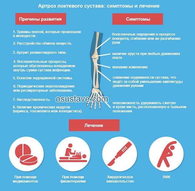 причины, симптомы, лечение артроза локтевого сустава
