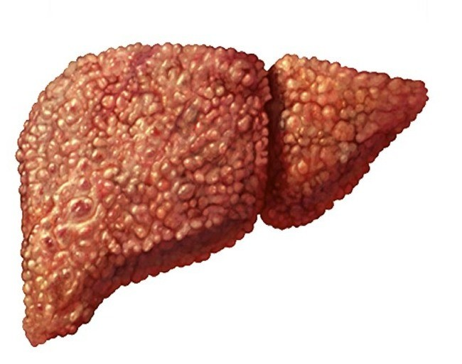 Повышение температуры при циррозе печени причины