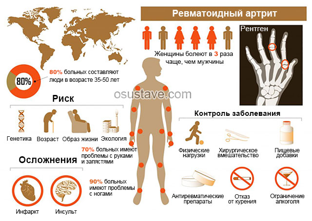 риски, осложнения и лечение ревматоидного артрита