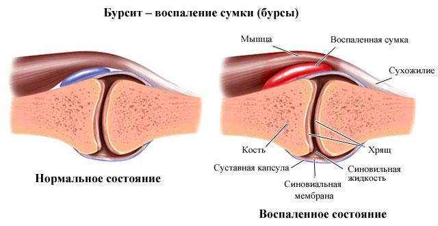 бурсит нормальное и воспаленное состояние