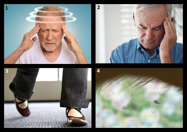 симптомы вертебро-базилярной недостаточности