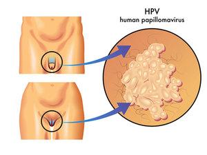 Как лечить вирус впч