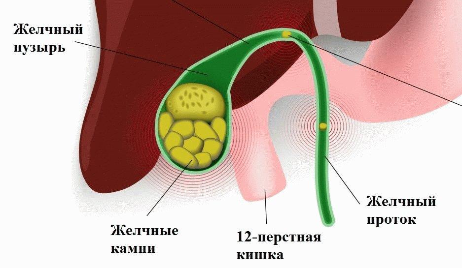 Желчнокаменная болезнь стадии