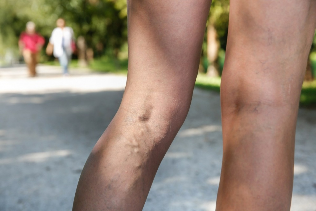Осложнения гепатита С