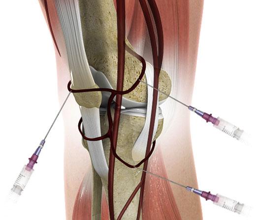 блокада нерва коленного сустава