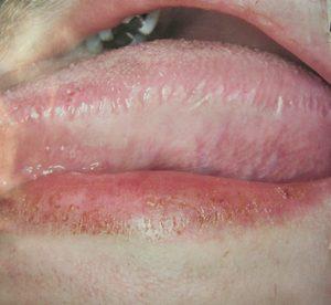 Волосистая лейкоплакия на боковой поверхности языка