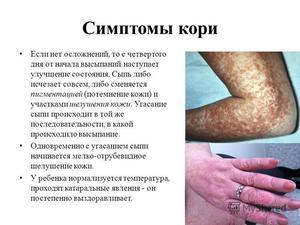 Эффективное лечение заболевания кори