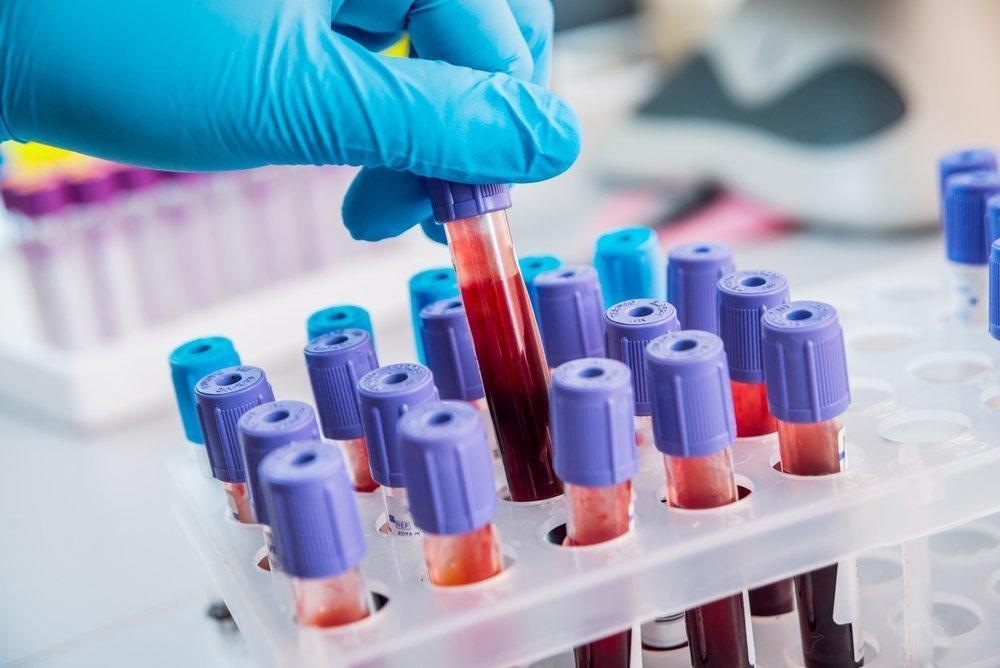 Биохимический анализ крови на анэхогенные заболевания