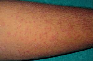 Как заражаются туберкулезом кожи
