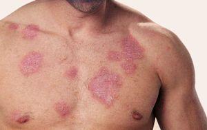 Как проявляется туберкулез