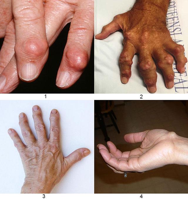 подагрические тофусы, узелки при ревматоидном артрите, узелки Гебердена, гигрома