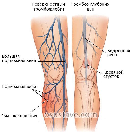 поверхностный тромбофлебит и тромбоз глубоких вен