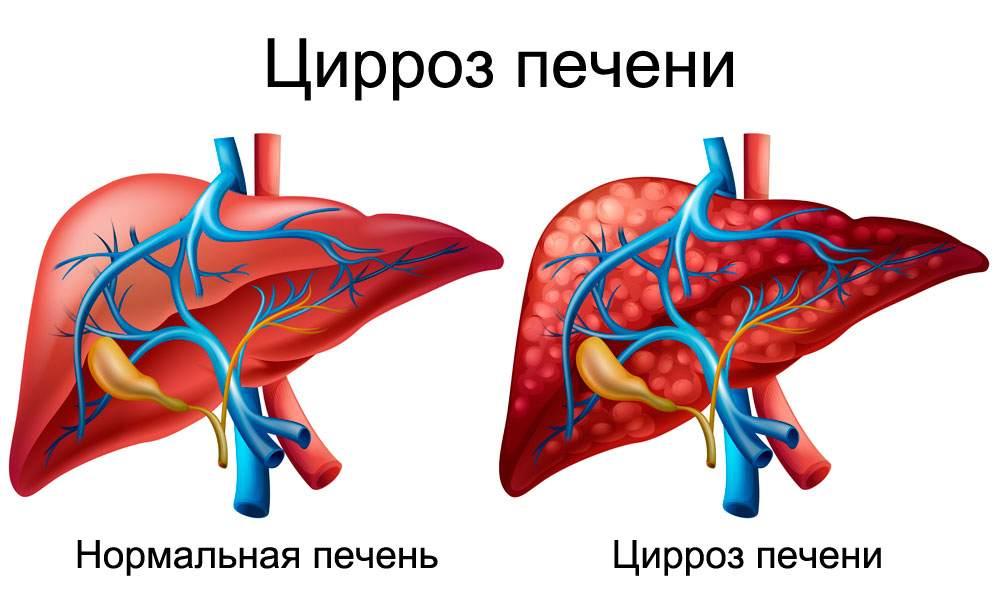 Цирроз печени при гепатите у беременных