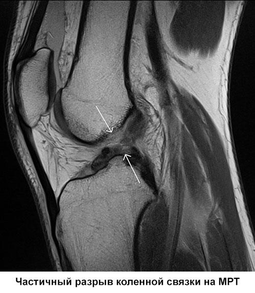 частичный разрыв коленной связки на МРТ