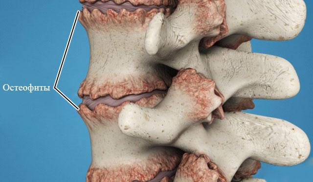 остеофиты тел позвонков