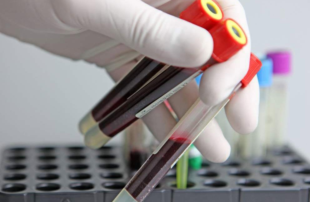 Что означает АСТ в анализе крови