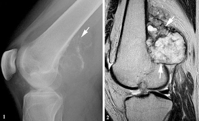 периостальная хондросаркома на рентгене и МРТ