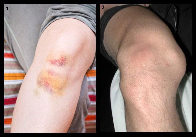 травмы коленного сустава
