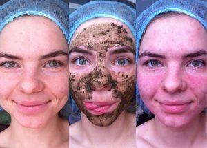Правила применения маски из бодяги