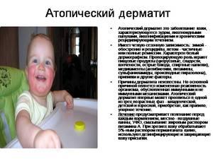 Особенности лечения дерматита