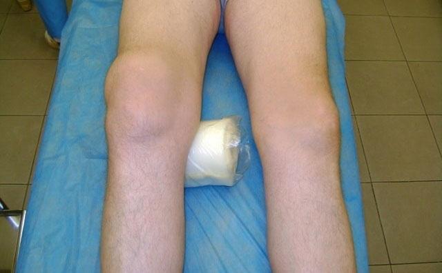 валик под колено при гемартрозе