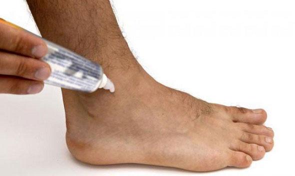 применение мази 911 для голеностопного сустава