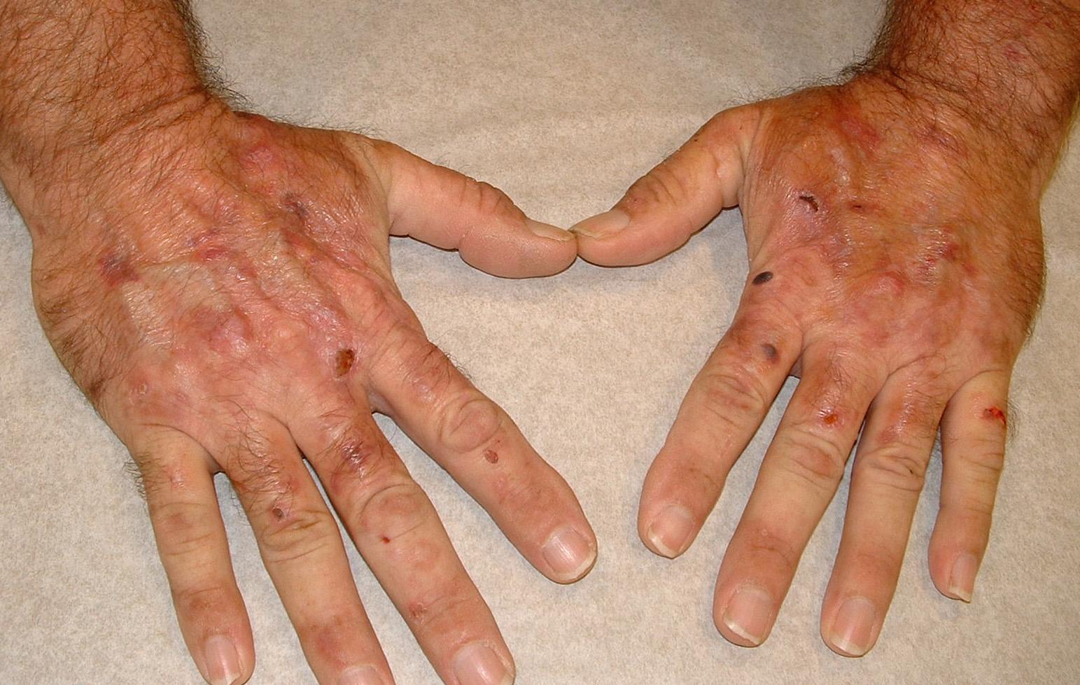 Симптомы гемохроматоза