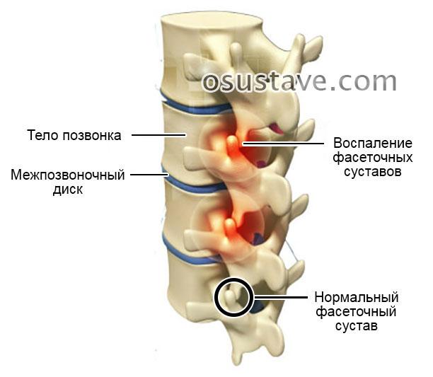 воспаление фасеточных суставов