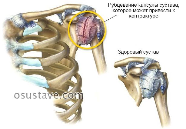 рубцевание капсулы плечевого сустава