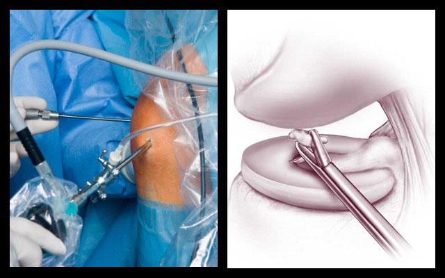 дебридмент коленного сустава