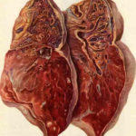Туберкулезный цирроз
