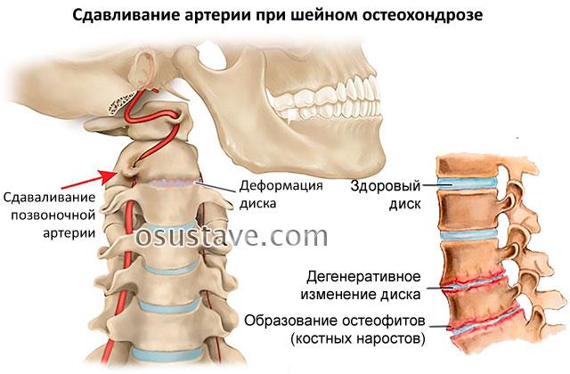 сдавливание артерии при остеохондрозе