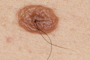 Казанцев приглашают проверить кожу на злокачественные опухоли
