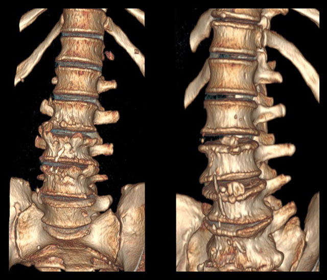 трехмерная реконструкция позвоночника, пораженного спондилезом