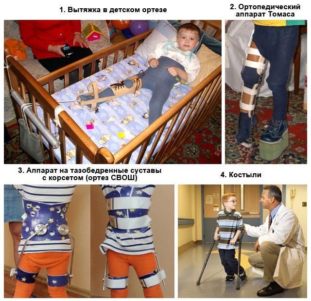ортопедические приспособления для лечения детей с болезнью Пертеса