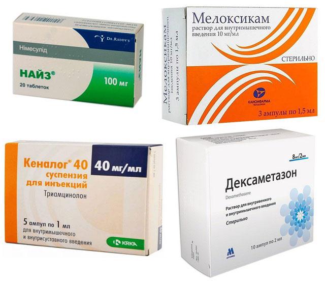 препараты Найз, Мелоксикам, Кеналог, Дексаметазон