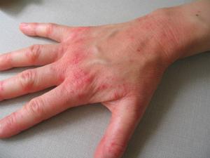 Почему возникает дерматит на руках