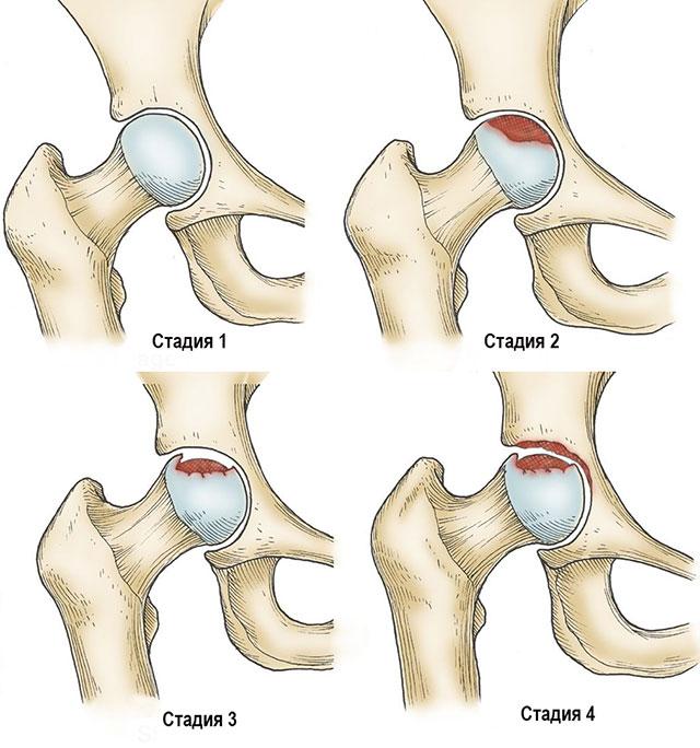 четыре стадии асептического некроза тазобедренного сустава