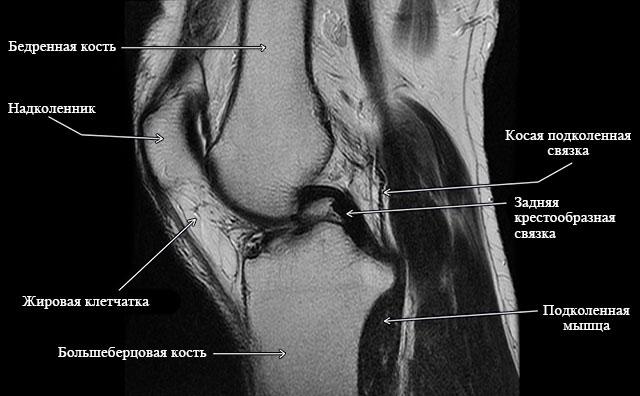 коленный сустав на МРТ
