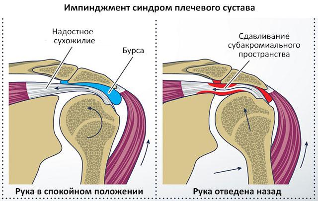 анатомия плечевого сустава в спокойном состоянии и в состоянии движения при импинджменте