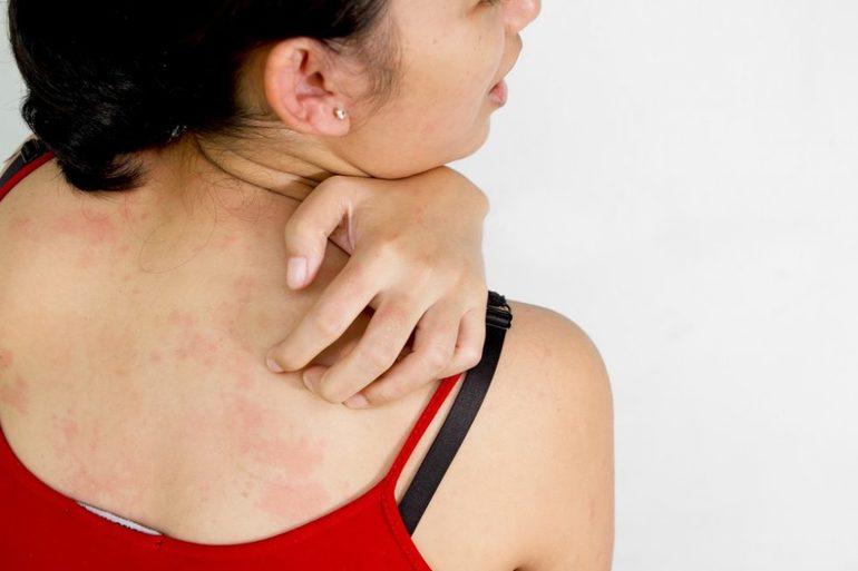 Рибоксин побочные эффекты