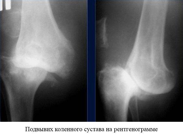 рентгеновский снимок при подвывихе коленного сустава