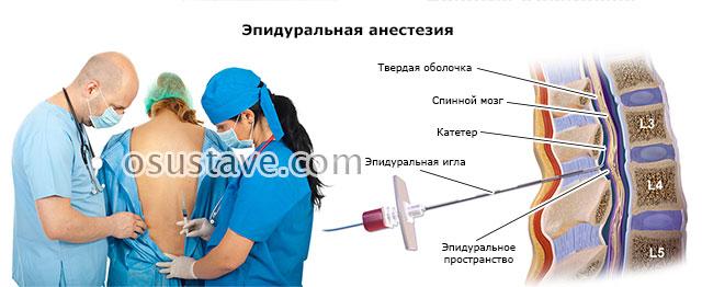 эпидуральная анестезия