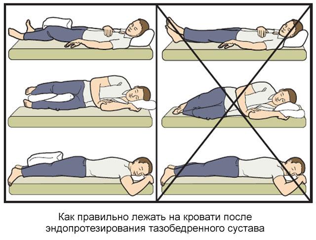 как можно и как нельзя лежать на кровати после эндопротезирования тазобедренного сустава