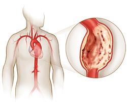 Симптомы буду зависеть от места локализации недуга