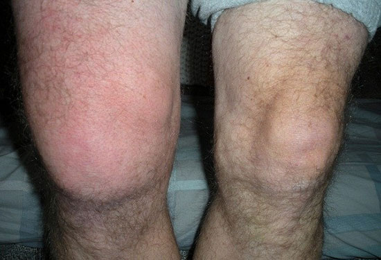 отек колена