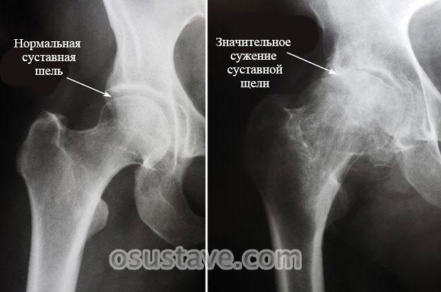 сужение суставной щели тазобедренного сустава на фоне артрита