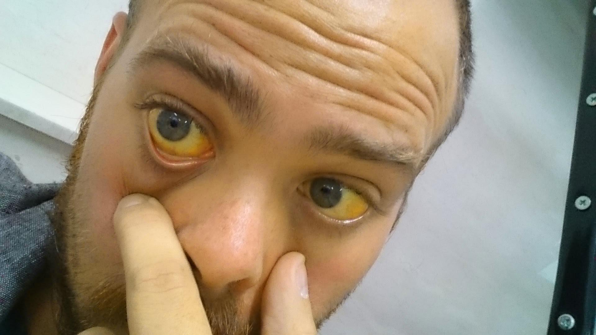 Глаза при гепатите